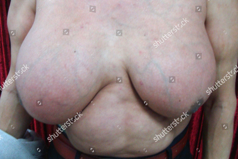 Massive male breasts