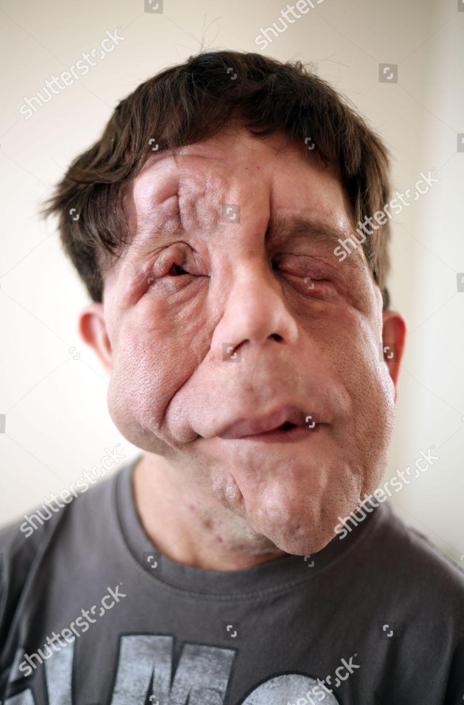deformed face man - 800×960