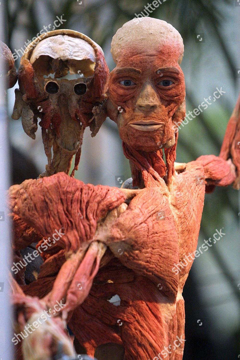 Real Human Body Body Worlds Editorial Stock Photo Stock Image