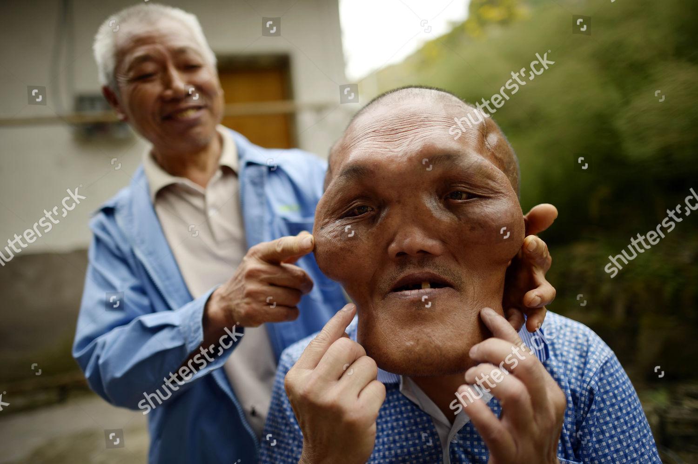 deformed face man - 1080×718