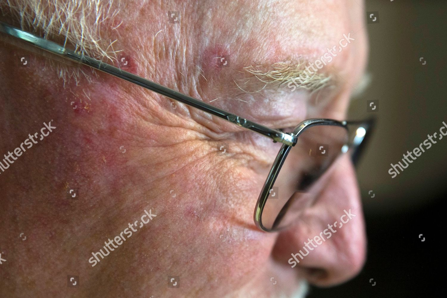 Ed Kienle Red Marks Skin Cancer Removals Editorial Stock Photo Stock Image Shutterstock