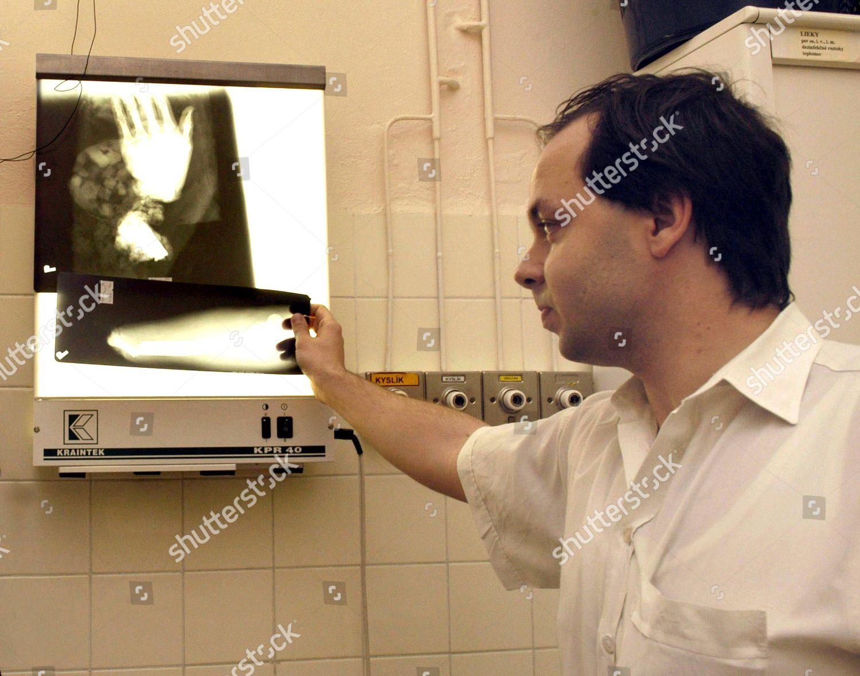 Medical doctor Rastislav Burda Editorial Stock Photo - Stock