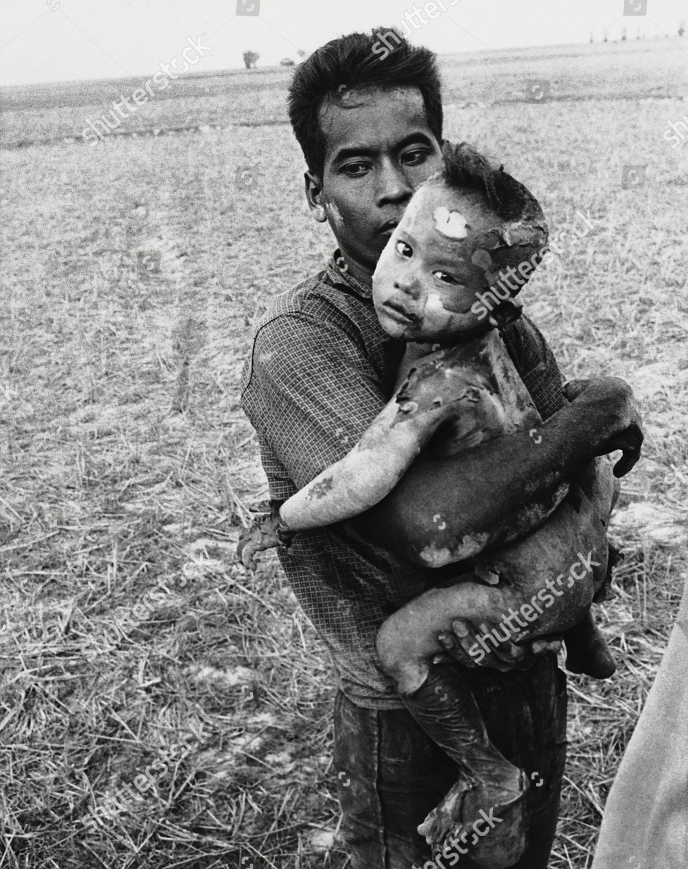 Vietnamese child body completely covered burns Napalm Foto editorial en stock; Imagen en stock | Shutterstock