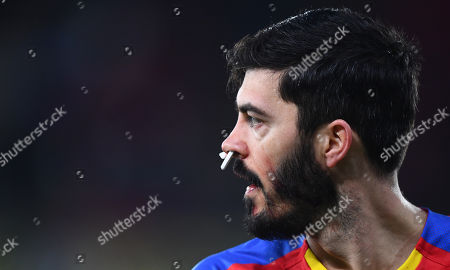 James Tomkins of Crystal Palace plays with cottons buds stuffed up his nostrils