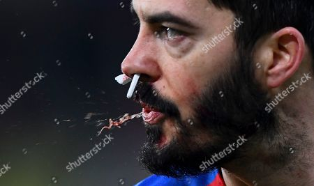 James Tomkins of Crystal Palace spits out blood as he plays with cotton buds up his nose