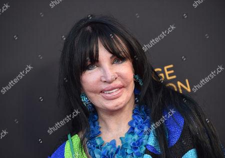 Loreen Arbus, President of the Loreen Arbus Foundation