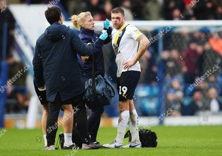 Oxford UnitedÕs Jamie Mackie has a cut eye during the match