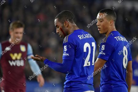 Leicester's Ricardo Pereira bleeds from ahead injury during the English League Cup semifinal first leg soccer match between Leicester City and Aston Villa at the King Power Stadium in Leicester, England