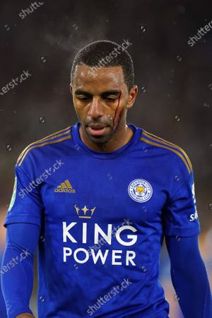 Ricardo Pereira of Leicester City has blood coming down his face from a wound over his eyebrow during the Carabao Cup semi final 1st leg match between Leicester City and Aston Villa in Leicester, Britain, 08 January 2020.