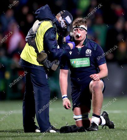 Stock Image of Ireland U20 vs Scotland U20. Scotland's Jack Hill injured