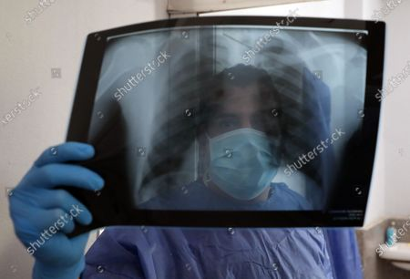 Medical personnel checks an X-ray at the Imbaba Fevers Hospital in Cairo, Egypt, 28 April 2020. Countries around the world are taking increased measures to stem the widespread of the SARS-CoV-2 coronavirus which causes the COVID-19 disease