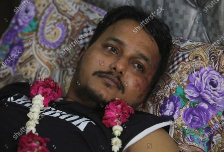 """Mohammad Zubair, a passenger who survived a plane crash, is visited by relatives at his home in Karachi, Pakistan, . When the plane jolted violently, Zubair thought it was turbulence. Then the pilot came on the intercom to warn that the landing could be """"troublesome."""" Moments later, the Pakistan International Airlines flight crashed into a crowded neighborhood near Karachi's international airport"""