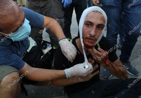 A Lebanese anti-government protesters gets first aid during clashes with riot police at a protest in Beirut, Lebanon, 08 August 2020. People gathered for the so-called 'the Saturday of the hanging ropes' to protest against the political leaders and calling on those responsible over the explosion to be held accountable. Lebanese Health Ministry on 07 August said at least 154 people were killed, and more than 5,000 injured in the Beirut blast that devastated the port area on 04 August and believed to have been caused by an estimated 2,750 tons of ammonium nitrate stored in a warehouse.