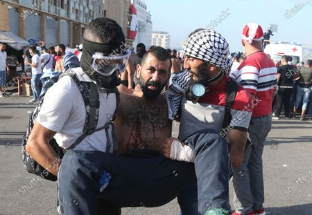 An injured Lebanese anti-government protester gets help during clashes with riot police at a protest in Beirut, Lebanon, 08 August 2020. People gathered for the so-called 'the Saturday of the hanging ropes' to protest against the political leaders and calling on those responsible over the explosion to be held accountable. Lebanese Health Ministry on 07 August said at least 154 people were killed, and more than 5,000 injured in the Beirut blast that devastated the port area on 04 August and believed to have been caused by an estimated 2,750 tons of ammonium nitrate stored in a warehouse.