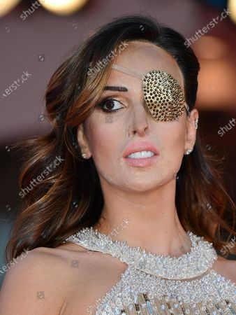Italian former Miss Italy finalist and acid attack victim Gessica Notaro arrives for the premiere of 'Le sorelle Macaluso' during the 77th annual Venice International Film Festival, in Venice, Italy, 09 September 2020.  The movie is presented in the Official Competition 'Venezia77' at the festival running from 02 September to 12 September.The event is the first major in-person film fest to be held in the wake of the Covid-19 coronavirus pandemic. Attendees have to follow strict safety measures like mandatory face masks indoors, temperature scanners, and socially distanced screenings to reduce the risk of infection. The public is barred from the red carpet, and big stars are expected to be largely absent this year.