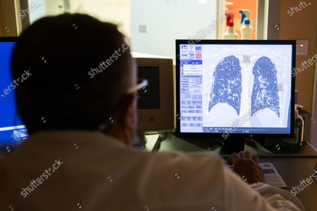 A doctor of the Casal Palocco Clinical institute checks the x-ray of the lungs of a hospitalized boy with COVID19 in, Rome, Italy, 23 September 2020. The Clinical institute, transformed into a hospital for COVID19 patients during the coronavirus emergency, reached zero cases during July. Hospitalizations and intensive care recovery for COVID19 at the COVID19 center in Casal Palocco, have increased since August reaching the peak in the last week and mainly concerns young people.