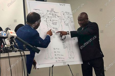 "Attorneys Carl Douglas, left, and Benjamin Crump, right, point to bullet wounds on a diagram of Dijon Kizzee's body as part of an independent autopsy during a news conference in Los Angeles. An autopsy report says Kizzee, a Black man shot and killed by Los Angeles County sheriff's deputies was wounded 16 times in the front and back but it doesn't shed any light on whether he was on the ground when he was shot. The county coroner's report supplied to The Associated Press on says Dijon Kizzee had four ""rapidly life-threatening wounds"