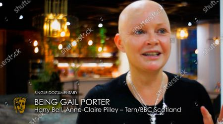Stock Picture of Exclusive - Gail Porter, Harry Bell, Anne-Claire Pilley - Single Documentary - 'Being Gail Porter'