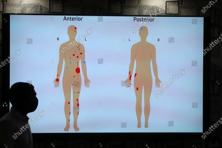 A doctor stands in front of an illustration showing injuries sustained by former president and current parliament speaker Mohamed Nasheed in a blast, in Male, Maldives, 09 May 2021. Nasheed was injured in a blast outside his family home on 06 May and was admitted to hospital in critical condition.