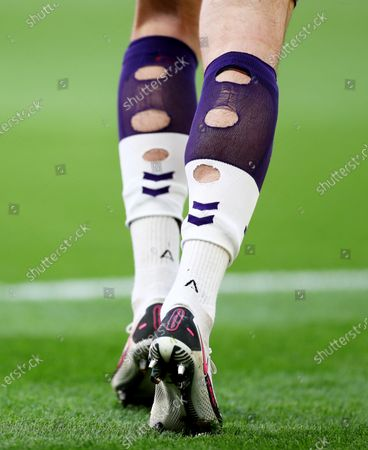 The ripped socks of Tom King of Newport County.