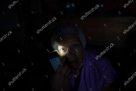 Stock Image of An eye of 81-year-old Dulce Carreno is illuminated by the cellphone of Dr. Javier Manrique during a home visit in the Las Minas neighborhood of Caracas, Venezuela, . Manrique visits the elderly in their home as a way to help them from having to go out amid the new coronavirus pandemic