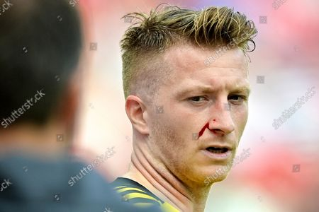 Dortmund's Marco Reus bleeds during the German Bundesliga soccer match between Bayer Leverkusen and Borussia Dortmund in Leverkusen, Germany, 11 September 2021.