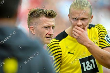Dortmund's Marco Reus (C) bleeds during the German Bundesliga soccer match between Bayer Leverkusen and Borussia Dortmund in Leverkusen, Germany, 11 September 2021.