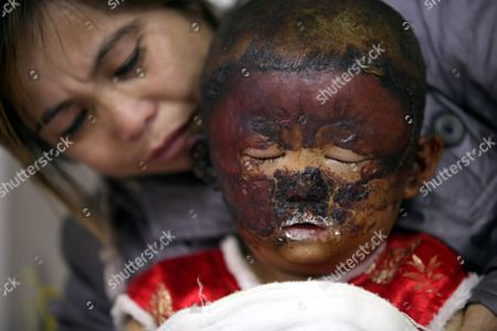 3-year-old Niu Niu in hospital with her grandmother