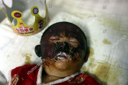 3-year-old Niu Niu in hospital