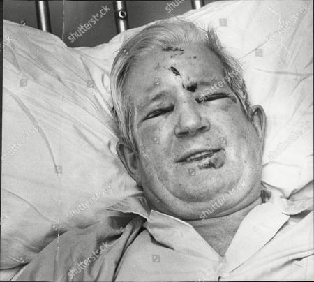 Comedian Ted Ray (died 11/77) In North Middlesex Hospital After Being Badly Injured In A Car Crash. He Was Later Charged With Drink-driving.