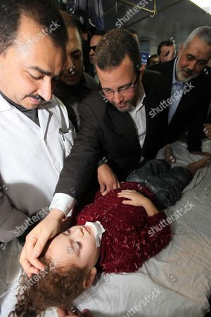 Egyptian Prime Minister Hesham Qandil meets a young female victim of an Israeli airstrike