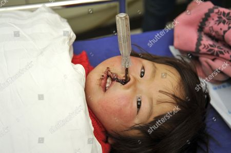 Jiali screwdriver impaled through her face Editorial Stock Photo
