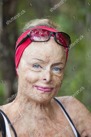 A lady who was horribly burned in a house fire. She now works for the Peter Hughes Burn Foundation in Australia providing counselling and support for the victims of the bush fires.