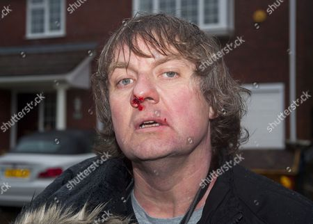 Stock Photo of Photographer Steve Reigate after the attack