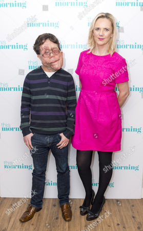 Stock Photo of Adam Pearson and Samantha Brick