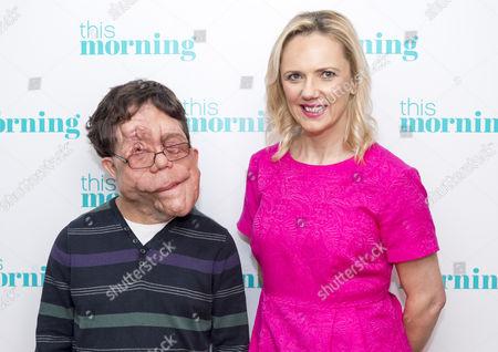 Stock Image of Adam Pearson and Samantha Brick