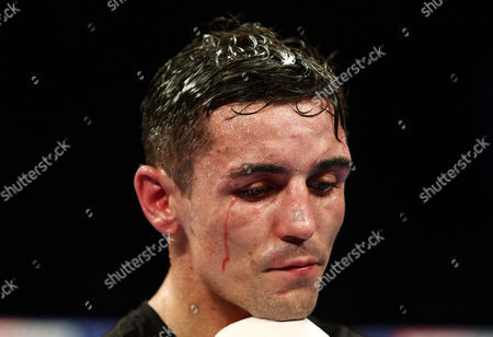 Anthony Crolla looks dejected after the WBA, WBC Diamond and Ring Magazine Lightweight World Titles fight with Jorge Linares at the Two Worlds Collide fight night at the MEN Arena, Manchester on 24th September 2016