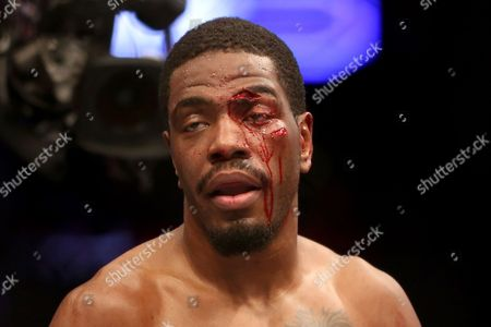 Stock Picture of Ron Stallings Ron Stallings is seen after the doctor stoppage with bad cuts and blood around his eyes after his fight with Uriah Hall at UFC Fight Night Boston, in Boston. Hall won via first round TKO