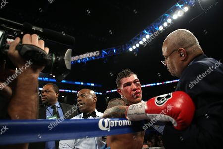 Gabriel Rosado A battered Gabriel Rosado is seen against David Lemieux during their middleweight fight at the Barclay's Center in Brooklyn, NY on . Lemieux won via 10th round TKO