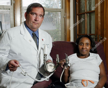 NELSON HILL Dr. Karl Nelson, left, clinical director of the Artificial Heart Program at LDS Hospital, and patient Cynthia Hill, right, display the difference in size between a traditional heart pump held by Nelson, and the new type of heart pump, held by Hill, in Salt Lake City. Hill is the beneficiary of a cutting-edge heart pump more than two times smaller than its predecessors being installed in clinical trials at a handful of hospitals. She received the procedure in January at LDS Hospital, and on Monday was released to a nearby home where she can walk, eat and essentially care for herself. That's a big step for Hill, who's been battling heart troubles for more than a decade