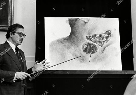 Dr. Michael Baden, New York City medical examiner, testifies before the House Assassinations Committee in Washington, D.C., as the panel continues its probe into the slaying of Dr. Martin Luther King. Baden points to a drawing which shows the bullet entry area in Dr. King's neck
