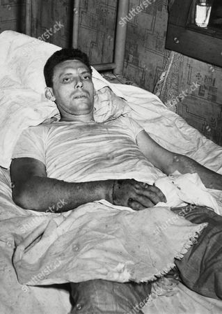Stock Image of The Rev. Atlas Johnson, 25, Holiness Church preacher, in his mountain cabin, seriously ill from a snakebite in Norton, Virginia, . Johnson clung to life, still without medical attention which he has steadfastly refused. He was bitten four times by a diamond-back rattlesnake during a snake-handling religious service on Sunday