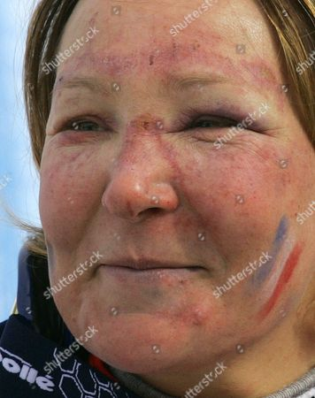 Carole Montillet-Carles of France stands near the finish area after the Women's Downhill at the Turin 2006 Winter Olympic Games in San Sicario Fraiteve, Italy, . Montillet-Carles who finished in 28th place was injured in a crash during training for the downhill on Monday