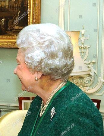 Queen Elizabeth II's bruise