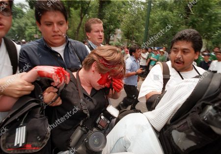 Stock Picture of PHOTOGRAPHER INJURED Phototographer Susana Gonzalez is helped by media colleagues after being hit by rock while she was covering clashes, in Mexico City, between soccer fans and riot police. Fans were celebrating Mexico's advance to the second round in the soccer World Cup