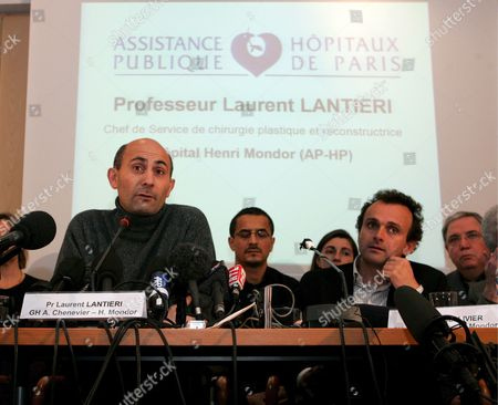 The Chief Plastic Surgeon of the Henri Mondor University Hospital Clinic in Creteil Professor Laurent Lantieri (l) Talks at a Press Conference in Paris France Tuesday 23 January 2007 His Team Performed a 15-hour Nose Mouth and Chin Transplant On a 27-year Old Male Suffering From a Disfiguring Inherited Disease the Transplant Was Done Outside Paris at the Henri Mondor University Hospital Clinic in Creteil