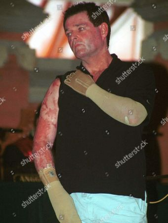 Peter Hughes One of the Bali Bombing Victims Shows His Burned Arm to the Judges As a Witnees During One of Key Bali Bombing Suspects Ali Ghufron First Trial in Denpasar Bali on Monday 16 June 2003 Ghufron the Alleged Operations Chief of the Militant Jemaah Islamiyah Group Went on Trial Monday Accused of Planning and Distributing Money For the Deadly October Bali Bombings That Left 202 People Dead Ghufron Alias Mukhlas was Escorted Under Tight Security From His Prison Cell to the Court House where a Panel of Five Judges Will Decide His Fate Under Indonesia's Judicial System There Are No Trials by Jury Epa-photo/epa/widhia Indonesia Denpasar