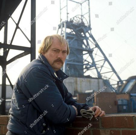 'Scab'   TV Dicken Ashworth