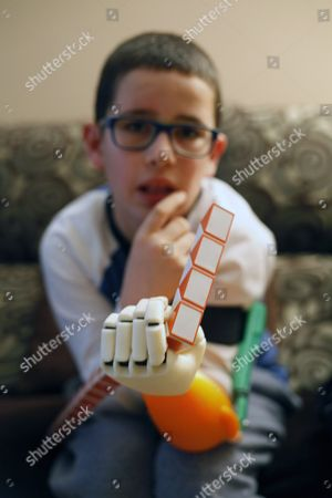Spanish 9-years-old Unai Blanco Displays His New Left Artificial Arm in His Home in a Coruna Galicia Northwestern Spain 13 February 2016 Unai who was Born Without a Left Hand Has Obtained a 3d Printed Prosthesis Thanks to a Group of Students who Designed and Made the Forearm and Hand For Unai the Boy Chose the Prosthesis Colors the Orange and Green and Got the Artificial Arm Thanks to His Mother Monica Martinez Monica Visited the Maker Faire Invertors and Creators Fair in Bilbao Basque Country and She Met One Teacher and Two Students From Don Bosco De Errenteria Vicational Training Center who Offered to Manufacture the Prosthesis For Free in Collaboration with Altruistic Foundation Enabling the Future One Year After Unai Received His New Arm on 08 February 2016 Now Unai Can Hold Items While Bending the Elbow Spain a Coruna
