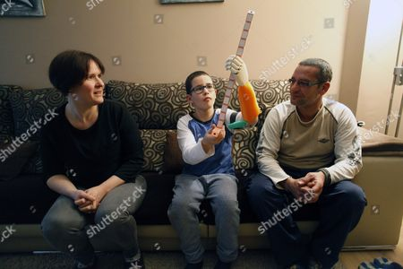 Spanish 9-years-old Unai Blanco Displays His New Left Artificial Arm in His Home in a Coruna Galicia Northwestern Spain 13 February 2016 Unai who was Born Without a Left Hand Has Obtained a 3d Printed Prosthesis Thanks to a Group of Students who Designed and Made the Forearm and Hand For Unai the Boy Chose the Prosthesis Colors the Orange and Green and Got the Artificial Arm Thanks to His Mother Monica Martinez (l) Monica Visited the Maker Faire Invertors and Creators Fair in Bilbao Basque Country and She Met One Teacher and Two Students From Don Bosco De Errenteria Vicational Training Center who Offered to Manufacture the Prosthesis For Free in Collaboration with Altruistic Foundation Enabling the Future One Year After Unai Received His New Arm on 08 February 2016 Now Unai Can Hold Items While Bending the Elbow Spain a Coruna